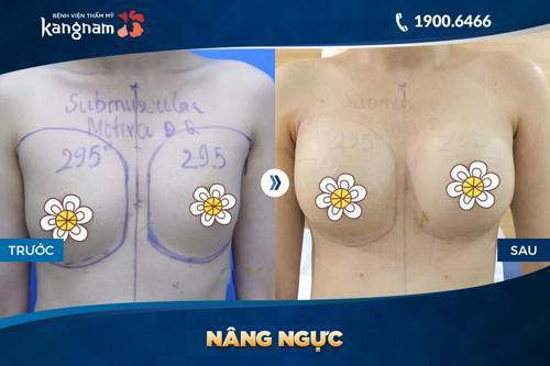 các phương pháp nâng ngực an toàn