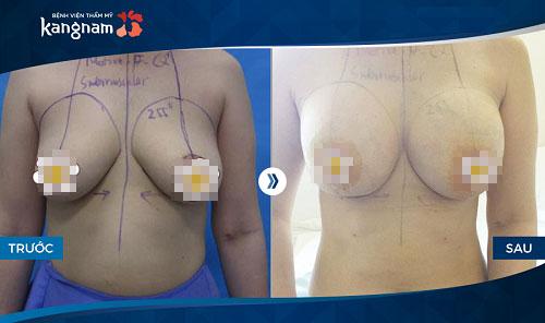 Hình ảnh nâng ngực