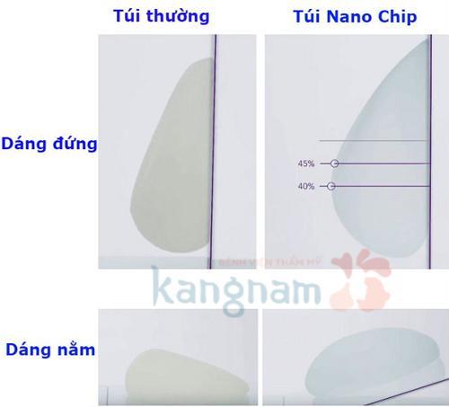 nâng ngực nano fat và nâng ngực nano