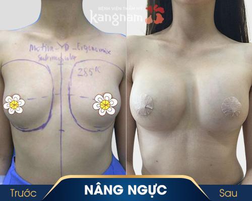 size túi ngực nano chip