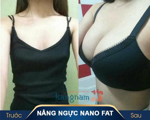 Nâng ngực Nano Fat
