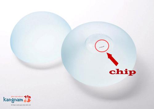 Phẫu thuật nâng ngực nano Fat