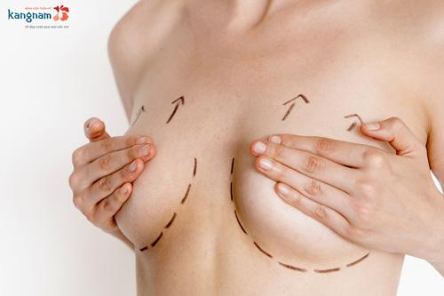 cách làm cho ngực to không cần phẫu thuật