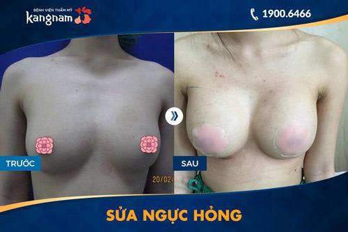 sửa ngực bị hỏng