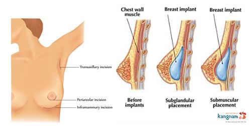 quy trình nâng ngực nội soi