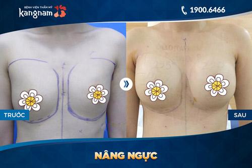 bảng giá nâng ngực