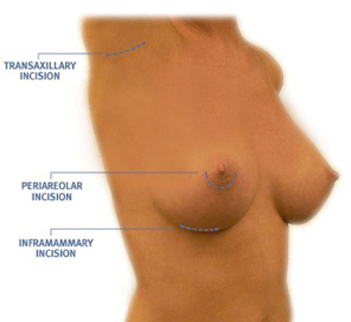 nâng ngực ở bệnh viện 108