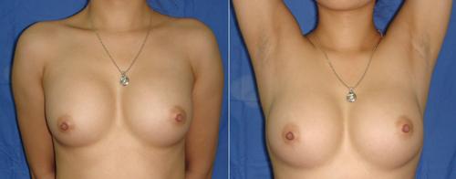 phẫu thuật nâng ngực ở bệnh viện 108