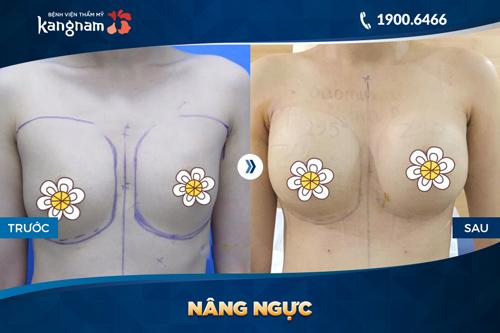 cách nở ngực không cần phẫu thuật