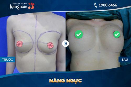 nâng ngực cấy mỡ tự thân