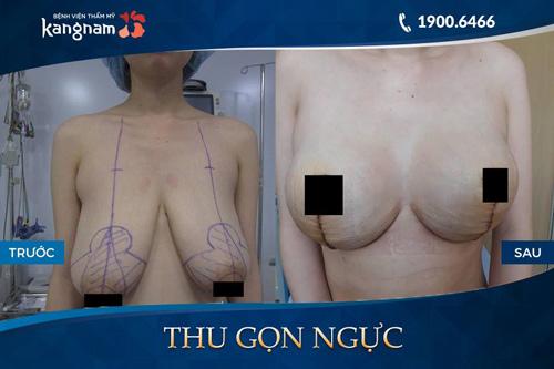 các cỡ ngực phụ nữ