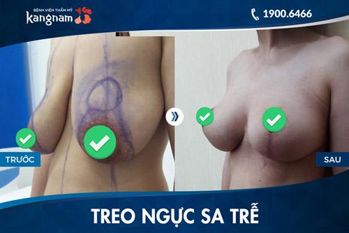 nâng ngực uy tín tại tphcm