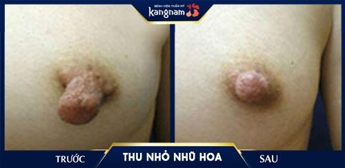 cách trị thâm đầu ngực