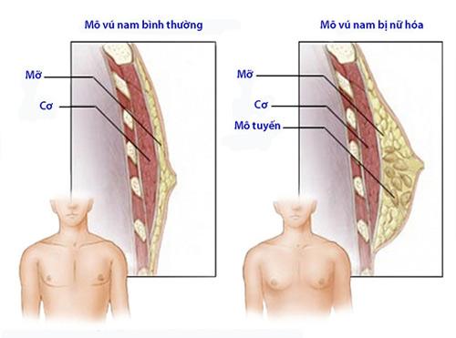 bệnh phì đại tuyến vú