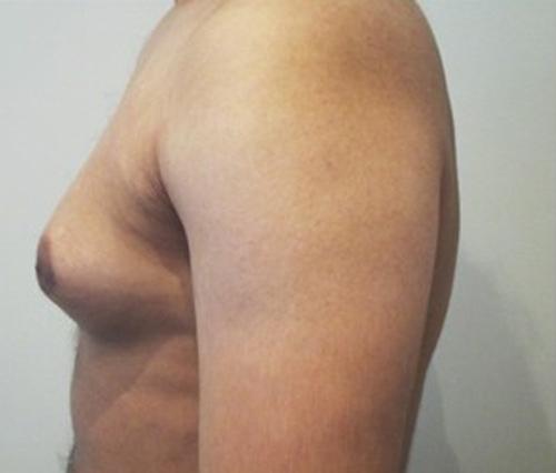 phì đại tuyến vú ở nam giới