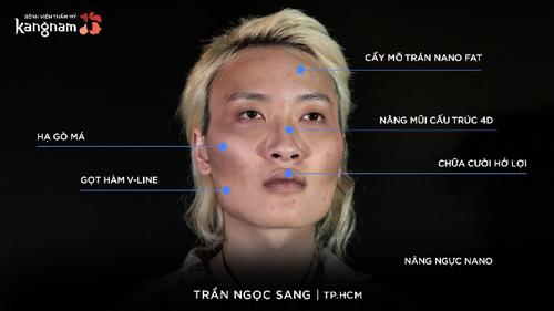 Trần Ngọc Sang phẫu thuật ở Kangnam