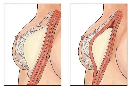 sau khi nâng ngực bao lâu thì ngực mềm